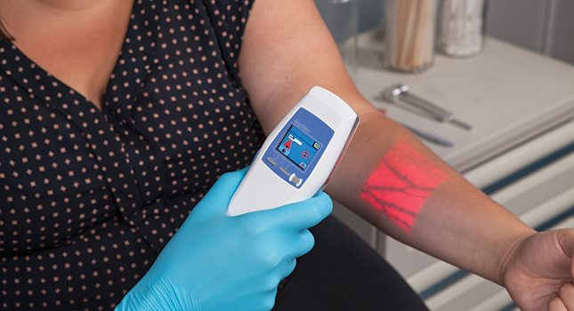 Above Photo: The Valley Hospital in Ridgewood has invested in the AccuVein illumination device, a small hands-free unit that, when held above the skin, lights up veins like a roadmap. As hemoglobin in the blood absorbs the infrared light, veins appear noticeably different than the surrounding tissue, aiding in vein location to collect a blood sample or administer IV medications.
